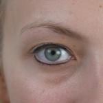 eye1-before