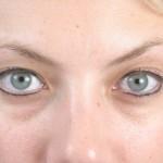 eyebrow3-before