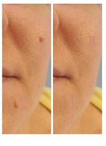 Facial Skin Tag Removal