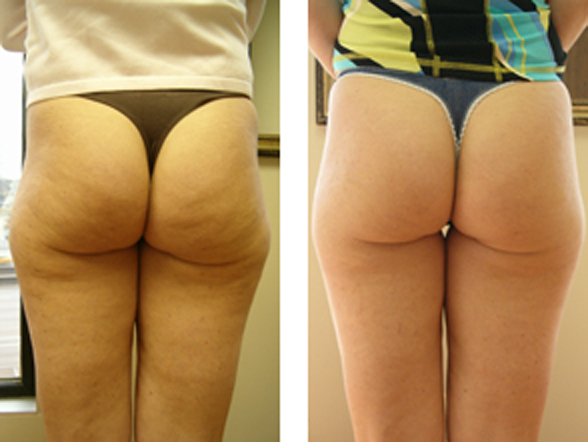 non-surgical-liposuction_before_and_after