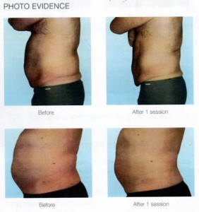 permanent_body_fat_removal_before-and-fat