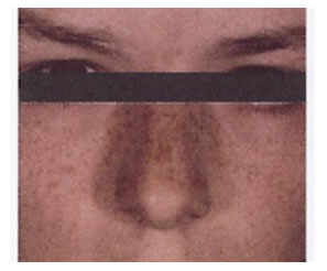 pigmentation_removal-after1