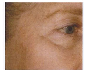 pigmentation_removal-after2