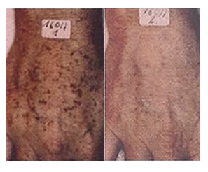 pigmentation_removal-after3
