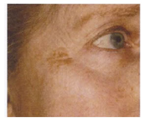 pigmentation_removal-before2