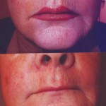 semi_permanent_makeup-lips_before-and-after
