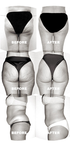 Endermologie Body And Face Options
