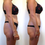 My-Lipo before and after one